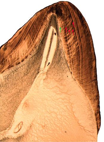 molar-teeth